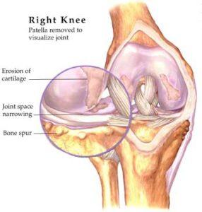 Osteoarthriticknee